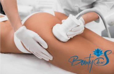 CAVITATIA--liposuctia-virtuala-1