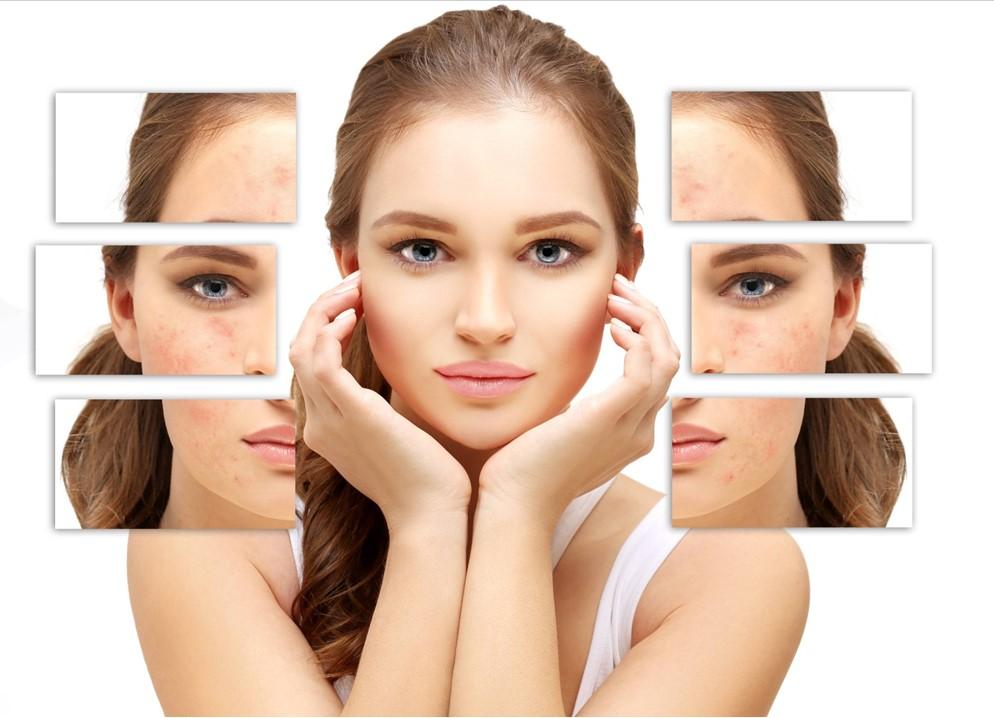 tratarea-petelor-pigmentare